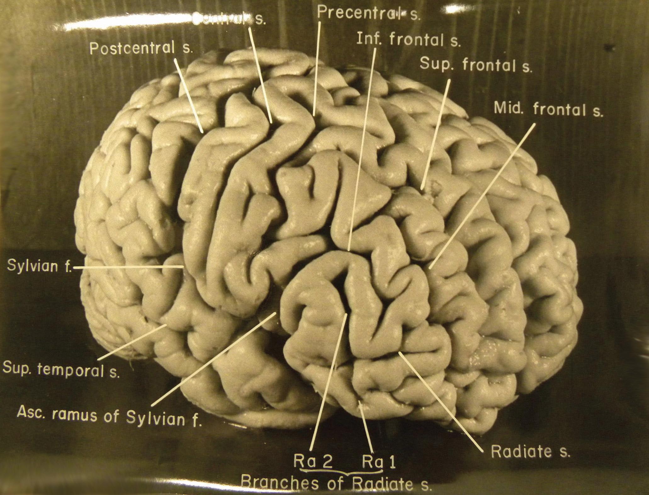 איינשטיין האתאיסט לא רמה שיסגדו לעצמותיו וביקש בצוואתו שגופו יישרף ואפרו יפוזר בנהר לא ידוע בניו-ג'רזי. אולם בניגוד לצוואתו שימרו הרופאים הארווי ואברהמס את מוחו ואת עיניו של איינשטיין ואף שלחו במשך השנים פיסות מהמוח למדענים שונים לצורכי מחקר. מוחו המשומר של איינשטיין