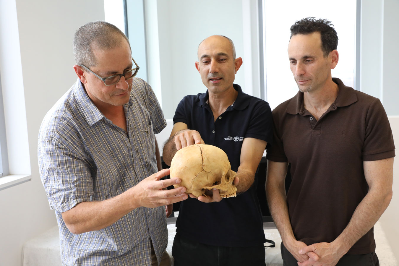 Professor Boaz Zisu, Dr. Nagar and Dr. Cohen with the fractured skull